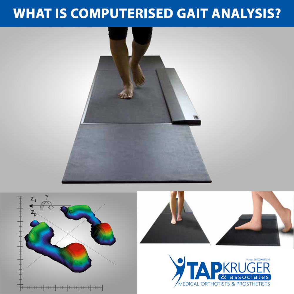 What is a Computerised Gait Analysis?