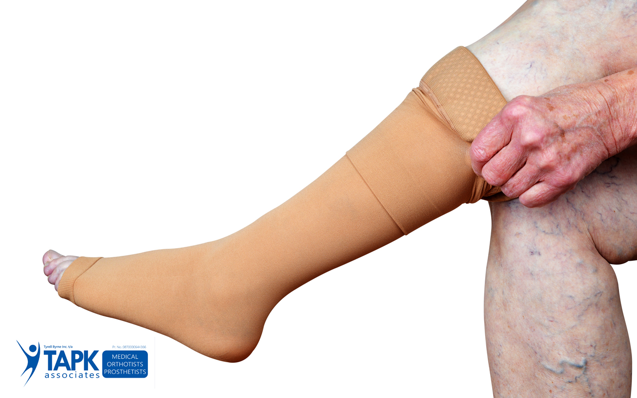 Compression Stockings Help Manage Medical Conditions